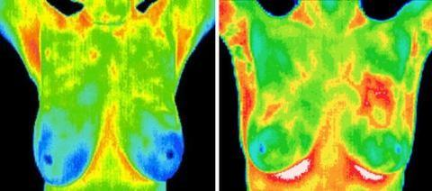 thermography-image